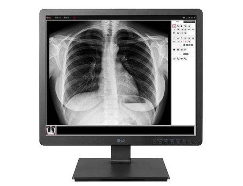 Η LG παρουσιάζει τη νέα σειρά ιατρικών συσκευών απεικόνισης